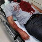 Nezar R. im Krankenhaus. Warum wird ein stark blutender Mann ohne Hilfe aus dem Lokal geschickt?